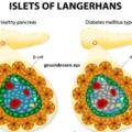 Seltene Formen von Diabetes